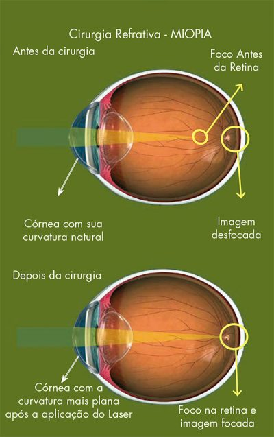 Disturbio Visual - Miopia
